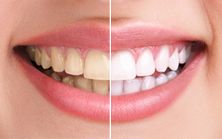 https://burnabysquaredental.com/wp-content/uploads/2015/11/TEETH-WHITENING.jpg