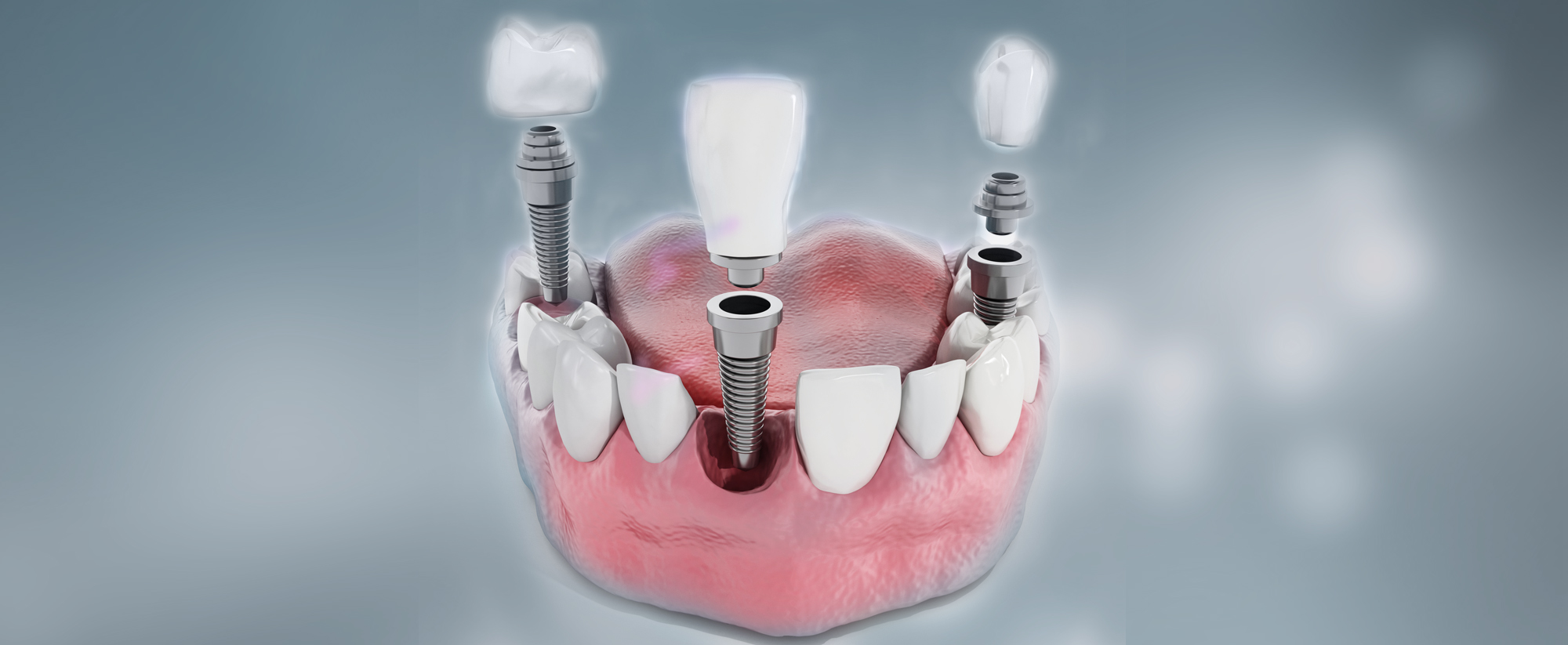 https://burnabysquaredental.com/wp-content/uploads/2015/11/Two.jpg