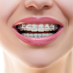 invisalign-for-teens