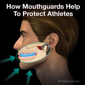 athletic-mouthguards-thumb