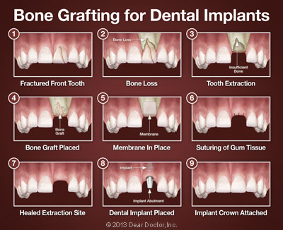 https://burnabysquaredental.com/wp-content/uploads/2016/08/bone-grafting-for-dental-implants.jpg