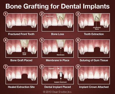 https://burnabysquaredental.com/wp-content/uploads/2016/08/bone-grafting-for-dental-implants.jpg
