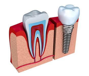 care-for-dental-implants