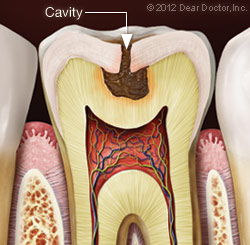 https://burnabysquaredental.com/wp-content/uploads/2016/08/cavity.jpg