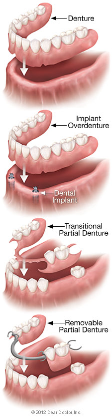 https://burnabysquaredental.com/wp-content/uploads/2016/08/removable-denture-types.jpg