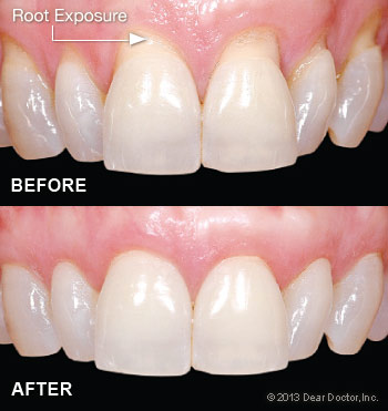 https://burnabysquaredental.com/wp-content/uploads/2016/08/root-exposure.jpg