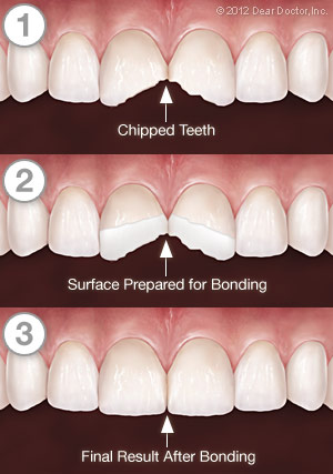 https://burnabysquaredental.com/wp-content/uploads/2016/08/tooth-bonding-series.jpg