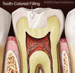 https://burnabysquaredental.com/wp-content/uploads/2016/08/tooth-colored-filling.jpg