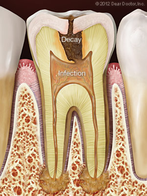 https://burnabysquaredental.com/wp-content/uploads/2016/08/tooth-decay-infection.jpg