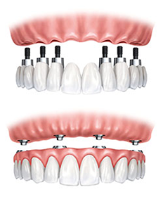 https://burnabysquaredental.com/wp-content/uploads/2016/08/tooth-fix.png