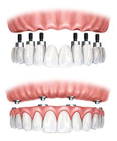 https://burnabysquaredental.com/wp-content/uploads/2016/08/tooth-fix.png