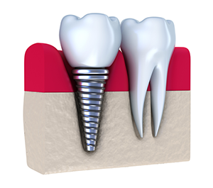 cosmetic-dental-implants.png