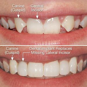missing-incisors-300.jpg