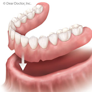 removable-denture-300.jpg