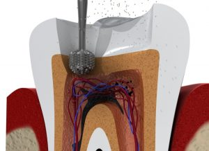 root-canal-treatment-burnaby