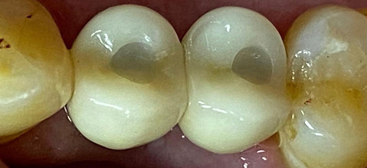 Dental Implants in Delivery After